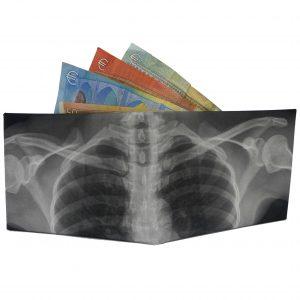 radiografia-fronte