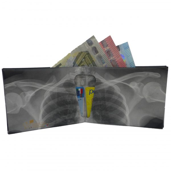 radiografia-retro